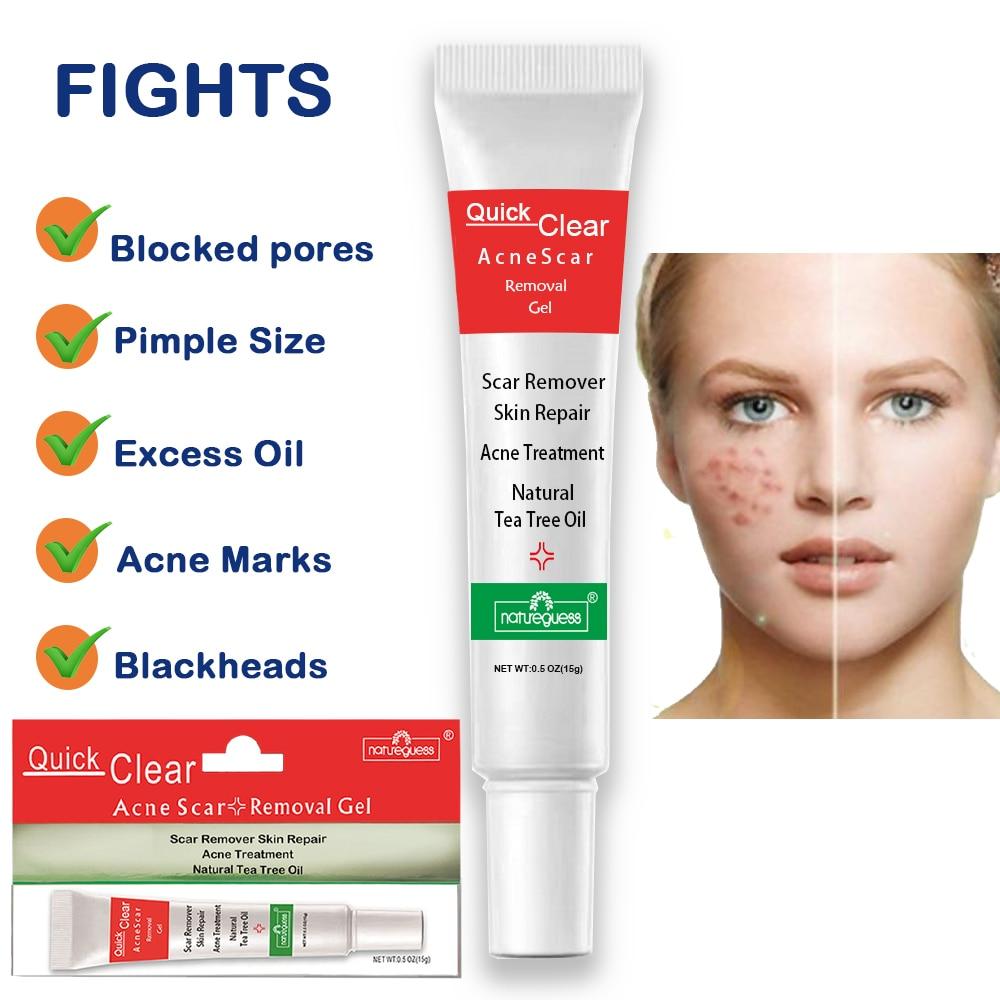 Acne Treatment Face Cream Scar Blackhead Remover Repair Gel Oil Control Shrink Pores Whitening Skin Care Korean Cosmetics-2