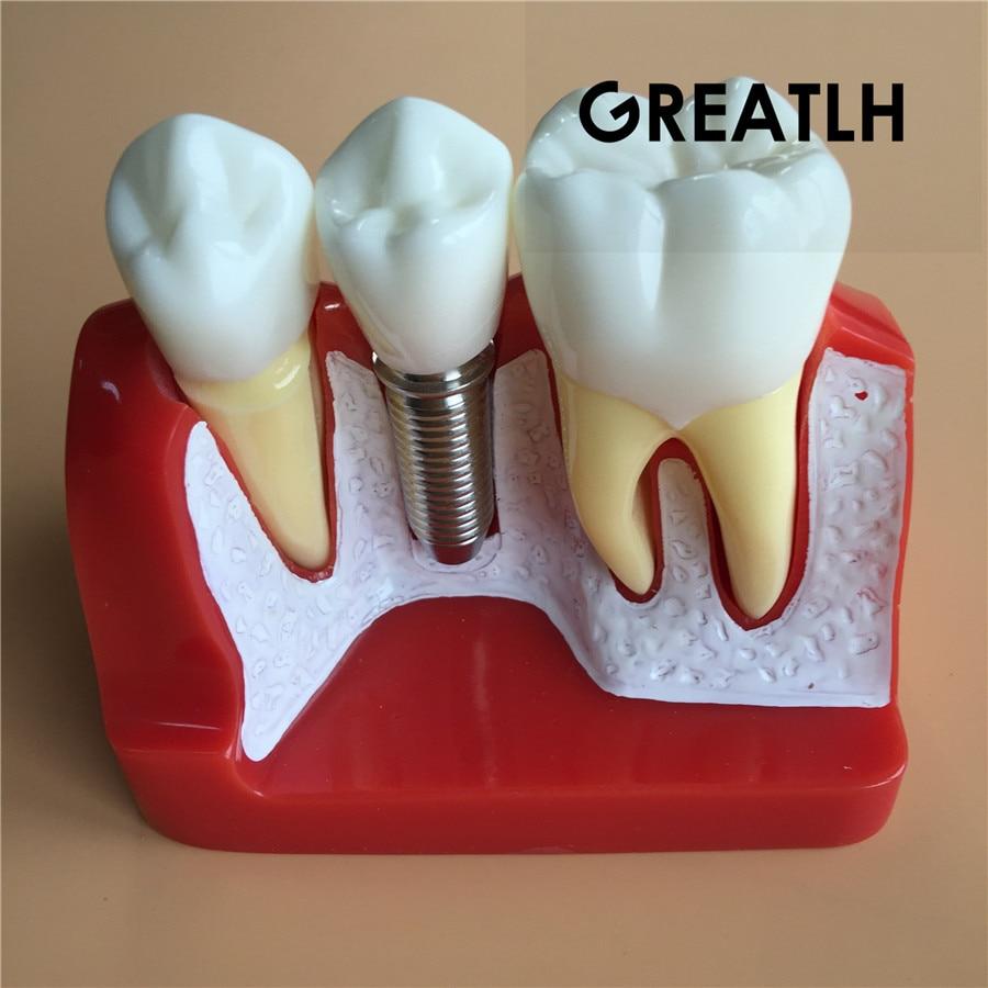 Dental Implant Analysis Crown Bridge Dental Demonstration Model Dentist Tools Study Model