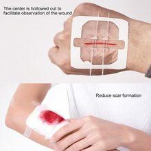 1pc zíper band-aid indolor dispositivo de fechamento sem agulhas sutura-livre de feridas curativo remendo zip sutura redutor banda aid