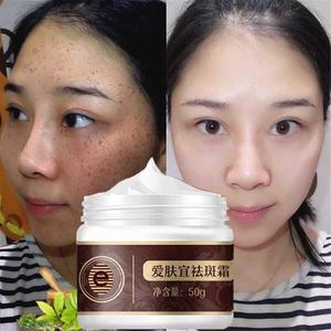 Treatment Face Cream Freckle Remover Cream Dilute Spot Melanin Melasma Whitening Treatment Anti-Spot Cream Skin Care TSLM1