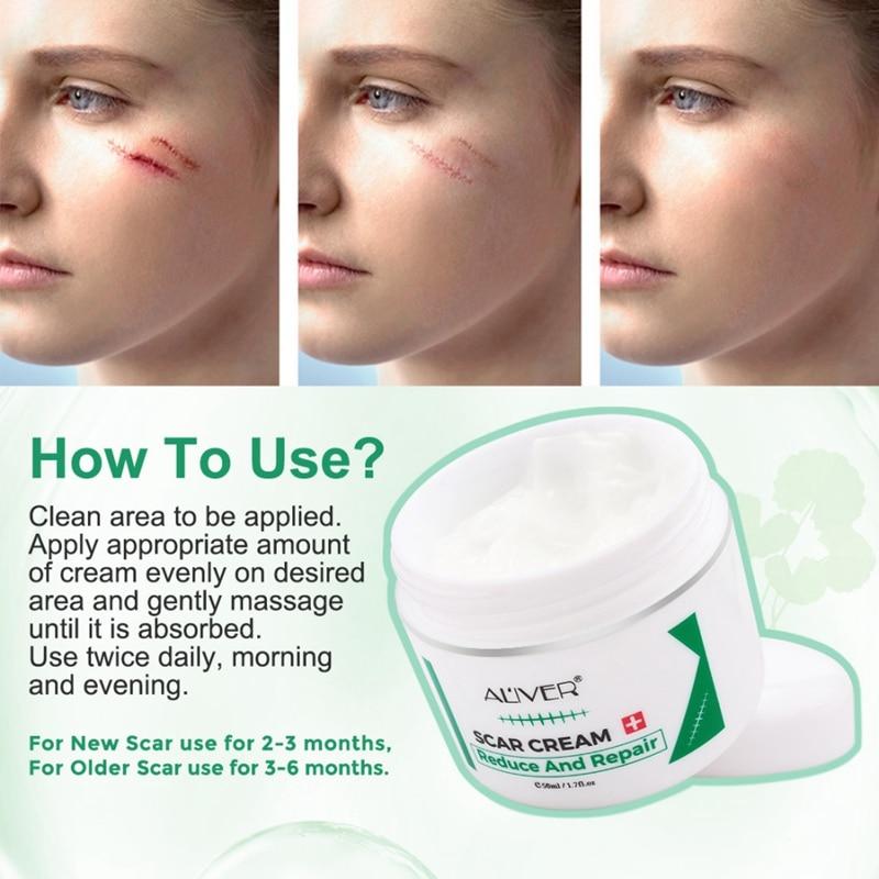 Skin Renewal Cream