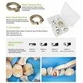 Высококачественная Стоматологическая секционная матричная система, стоматологическая секционная матричная лента, зажимное/разделяющее к...