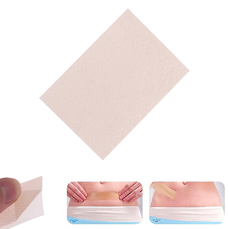 Silicone Gel Scar Sheet Removal Patch Reusable Acne Gel Scar Therapy Sheet Skin Repair 1pc Visible Scar Treatment 5cmx3.5cm