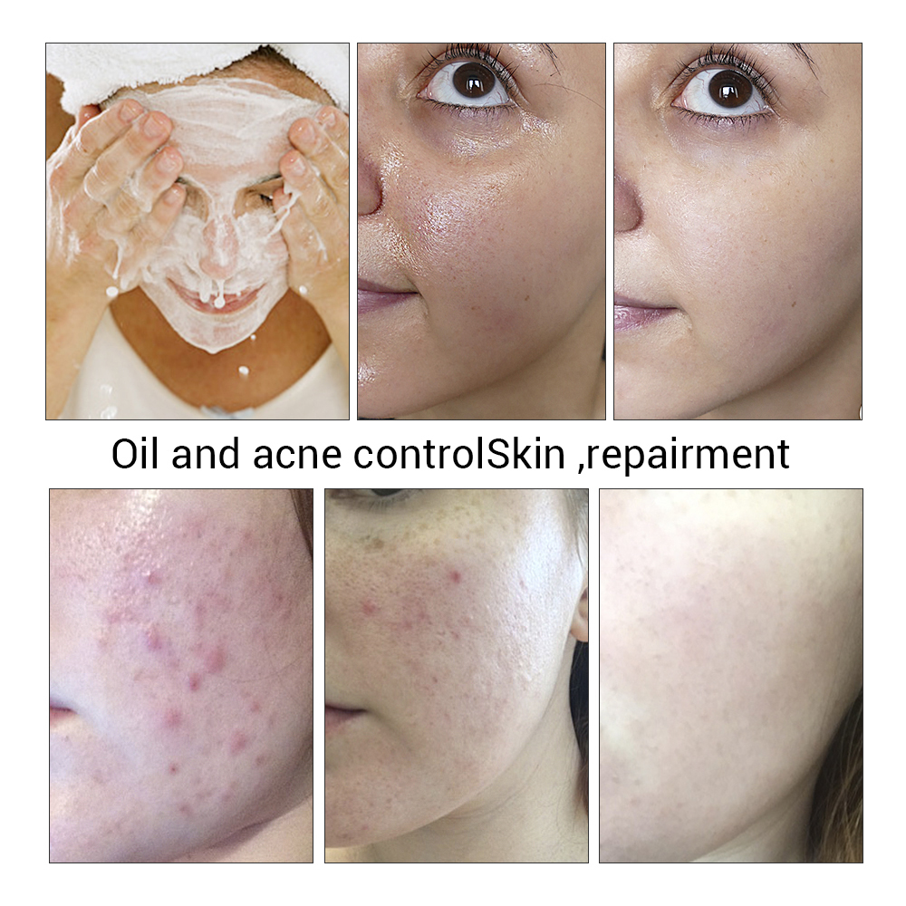 LANBENA Handmade Soap Tea Tree Essential Oil Facial Cleansing Acne Treatment Moisturizing Remover Anti-Aging Blackhead