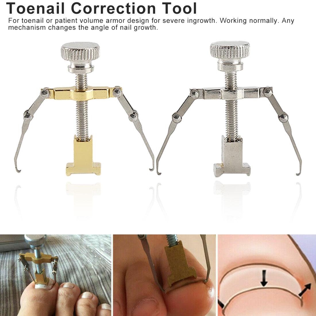 Nail Care Tool Orthotic Nail Corrector Pedicure Tool 1pcs Useful Ingrown Nail Foot Correction Tool Pedicure Toenail Fixer Foot