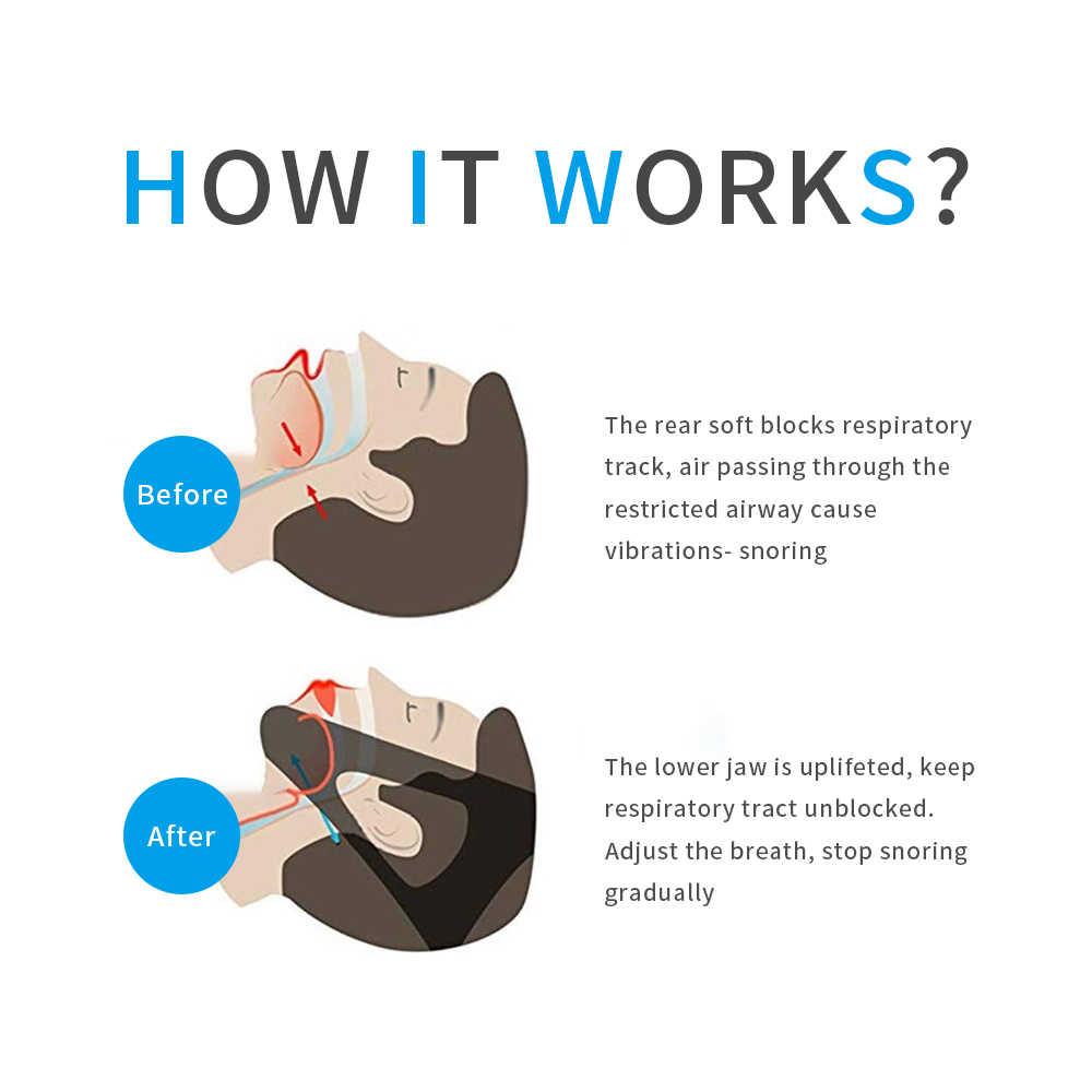 אנטי נחירה מכשיר מתכוונן לנחור סנטר רצועת הפחתת איידס עבור גברים ונשים להשתמש עבור להפסיק לנחור לסת רצועת שינה עוזר