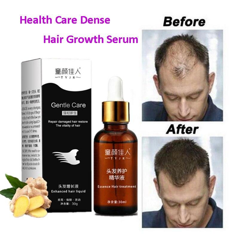 Имбирный продукт для быстрого роста волос, 30 мл, для быстрого роста волос, для мужчин и женщин, натуральный продукт для выпадения волос, лече...