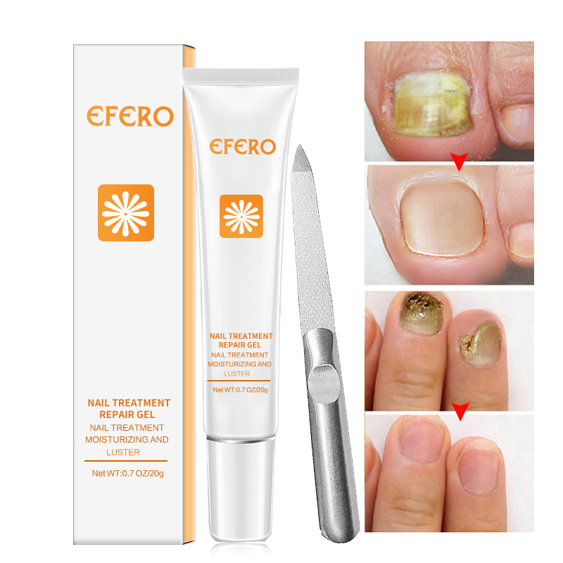 Pedicure-Tool Essence Serum Toe-Nail-Fungus-Removal-Gel Nail-Treatment Feet-Care Whitening
