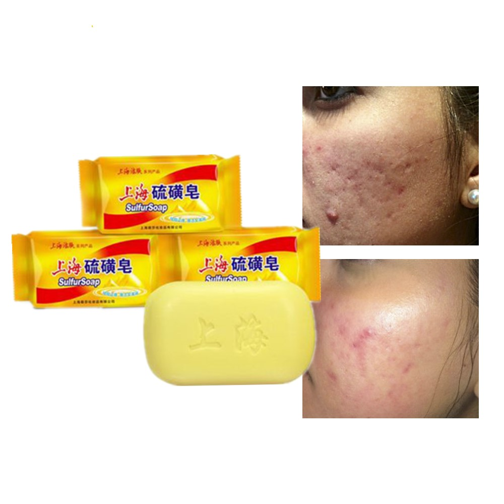 Shanghai Sulphur Bath Soap Is On Sale Sterilization And Acaricide Removal Powerful Skin Cleaning. Prevention Of Psoriasis Fungi