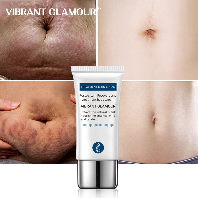 VIBRANT GLAMOUR Crocodile Stretch Marks Remover Cream Pregnancy Scars Ance Maternity Repair Anti Aging Winkles Firming Body Care