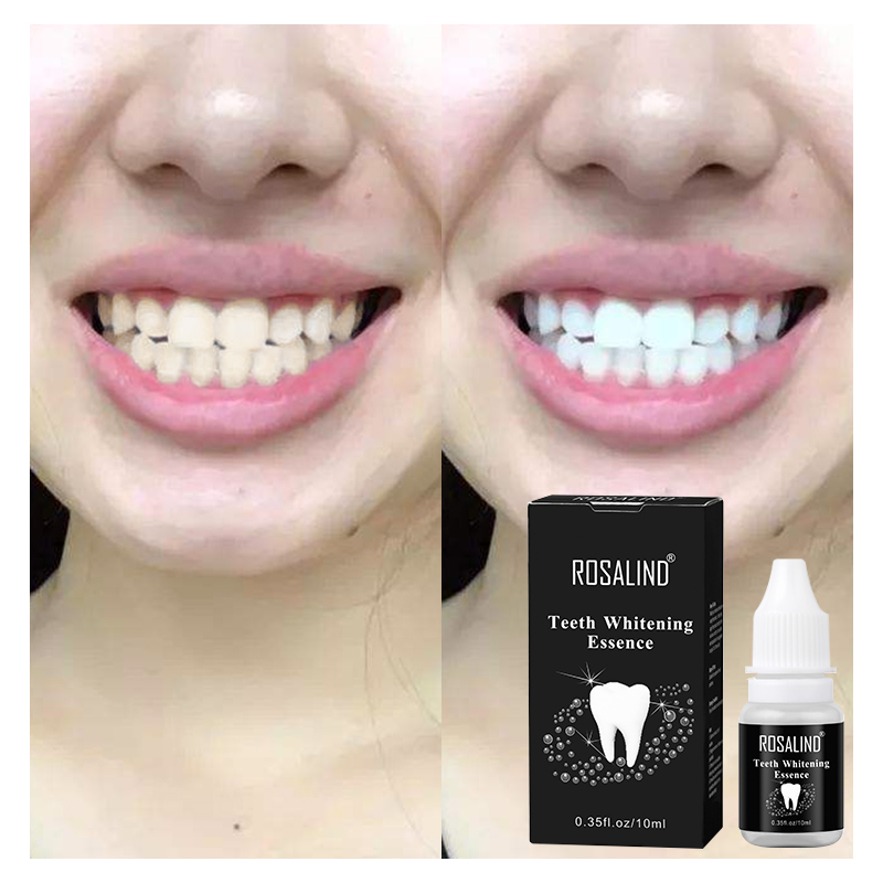 Clearance Sale! ROSALIND Dental Material Teeth Whitening Essence Oral Hygiene Cleaning Serum Bleaching Dental Tools White Gel