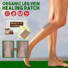 6 пластырей для лечения вен ног, органический пластырь для лечения варикозного расширения Вен Паука, пластырь для варикозного расширения ве...
