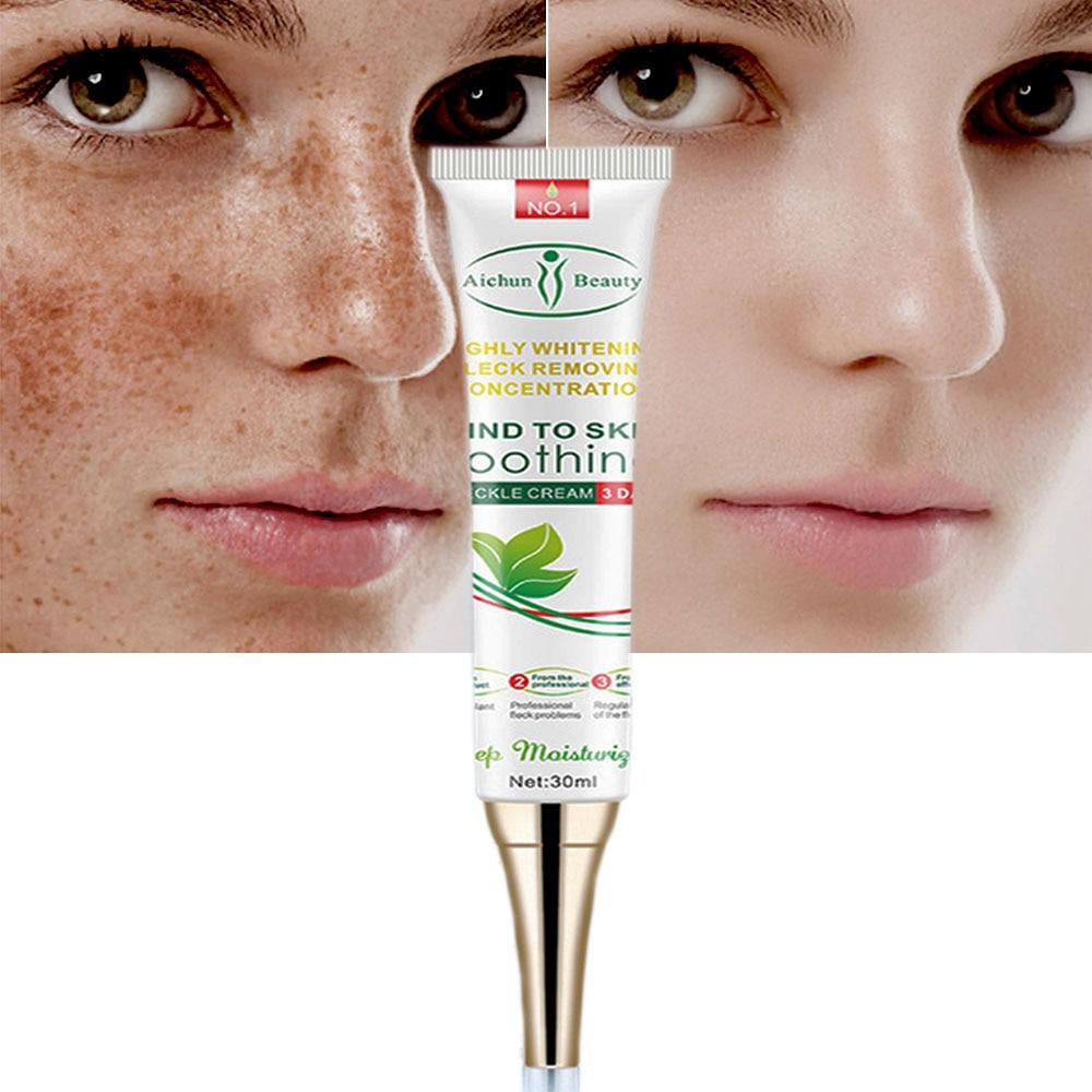 Effektive Bleaching Sommersprossen Creme Entfernen Melasma Akne Spot Pigment Melanin Dunkle Flecken Pigmentierung Feuchtigkeitsspendende Gel Hautpflege