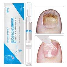 10 pçs 3ml líquido anti unha unha unha fungo tratamento caneta cutícula óleo caneta cuidados unhas solução tratamentos ferramenta tslm2