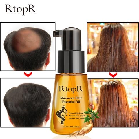 RtopR Morocco Herbal Hair Essential Oil Anti Hair Loss Liquid Thick Fast Hair Growth Treatment Essence Oil Hair Care 35ml TSLM1 Pakistan