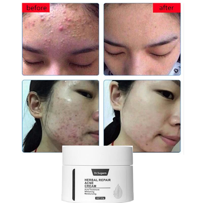 Dr-Sugarm-Skin-Care-Set-Hyaluronic-Acid-Face-Serum-Anti-Aging-Green-Tea-Cleansing-Moisturizing-Mask (2)