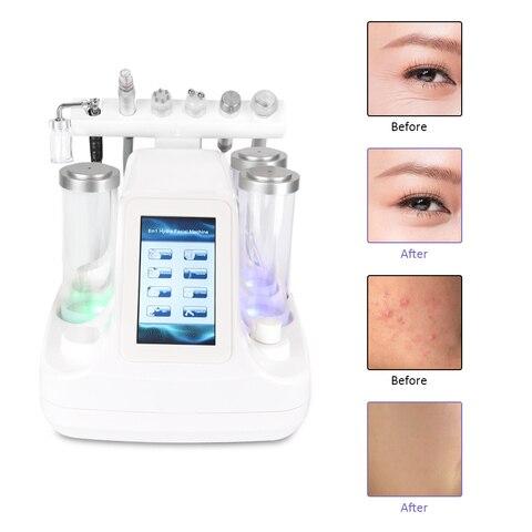 rf hydra profunda facial ance pore cleaner