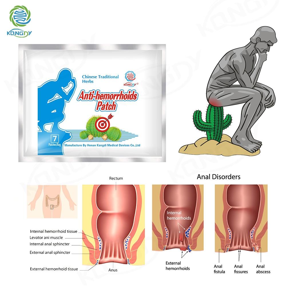 KONGDY Hemorrhoid Relieve Patch 21Pcs Herb Plaster Treatment Bleeding Anus Internal/External Hemorrhoid Pain Relief Anal Fissure
