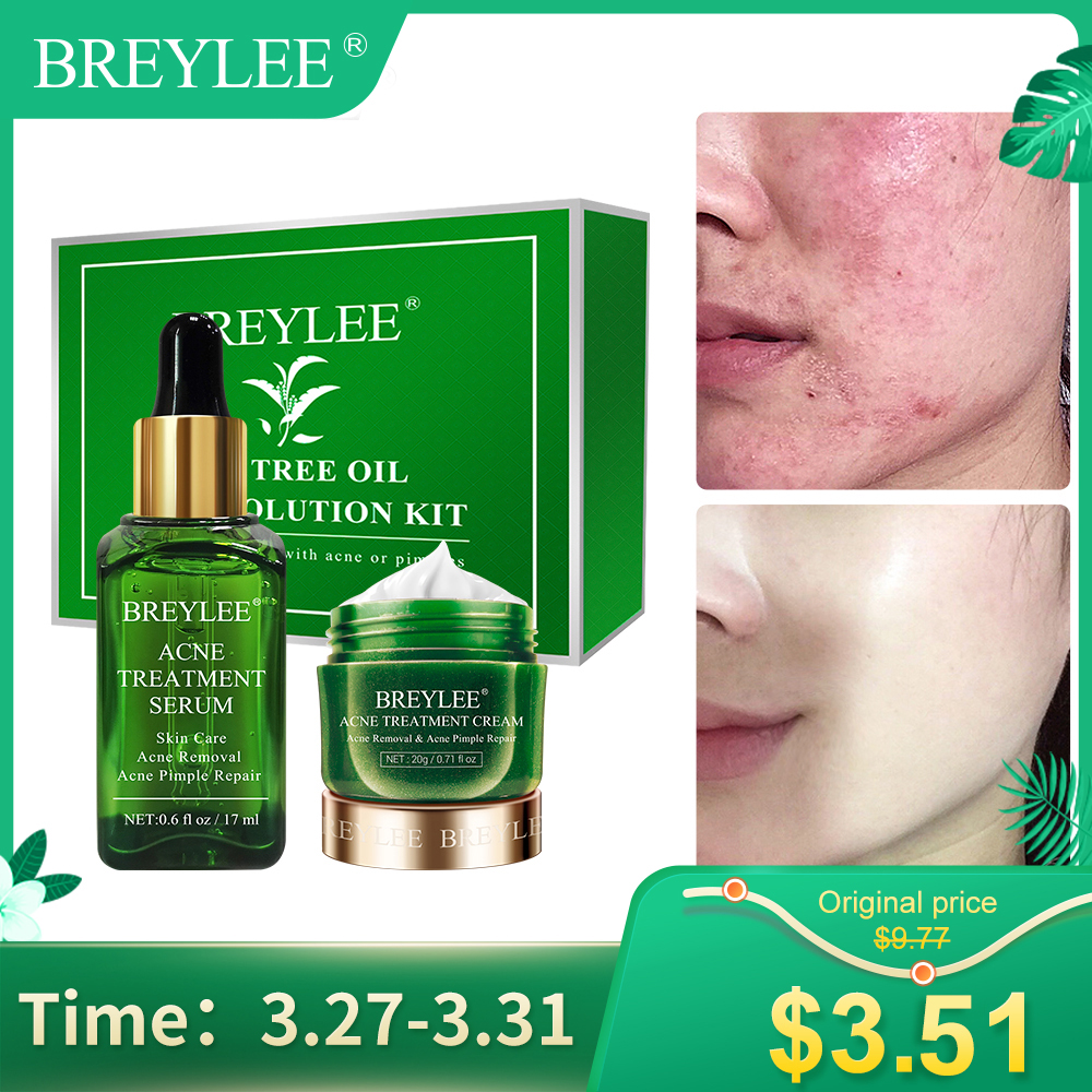 BREYLEE Anti Acne Face Serum Cream Treatment Facial Pimple Spots Remover  Oil Control Shrink Pores Moisturizing Repair Skin Care