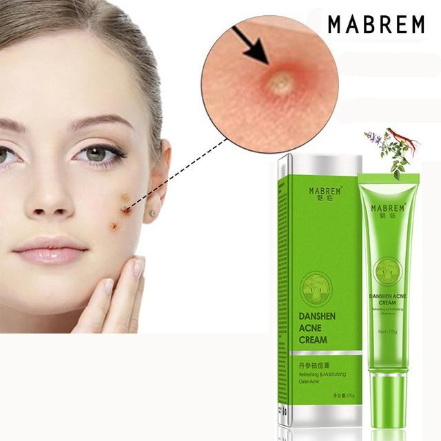 Effective Acne Removal Cream Acne Treatment Fade Acne Spots Oil Control Shrink Pores Whitening Moisturizing Acne Cream Skin Care 2