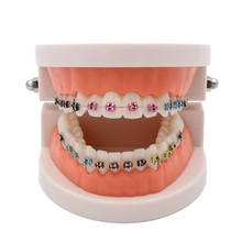 Dental Orthodontic Model With Metal Tray Bracket, Dental Oral Orthodontic Module, Students Tooth Training Mold Practice Tools