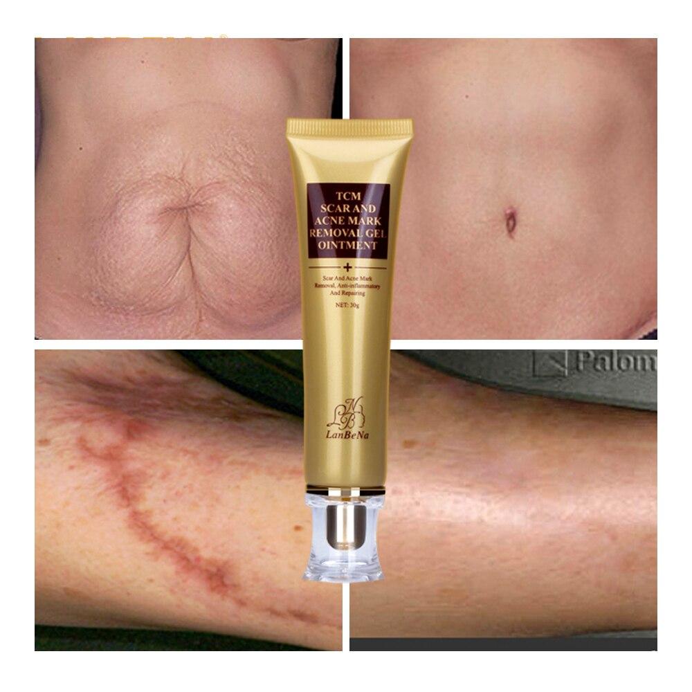 Acne Scar Removal Cream Skin Repair Face Cream Acne Spots Acne Treatment Blackhead Whitening Cream Stretch Marks 30ml