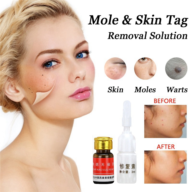 Mole Removal Solution Painless Mole Skin Dark Stain Removal Face Wart Tag Freckle Removal Cream Oil Blemish Remover