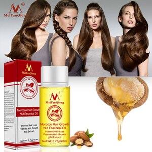 Image 4 - Schnelle Leistungsstarke Haar Wachstum Essenz Haarausfall Produkte Ätherisches Öl Flüssigkeit Behandlung Gegen Haarausfall Haarpflege Produkte 20ml
