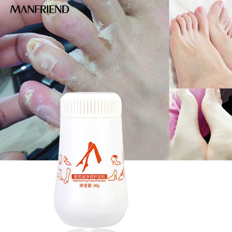 Ayak tozu tedavisi çözüm ayak kokusu ayak ter kaşıntı bakteri temizleme kabarcıklar Cutin dehulling cilt bakımı ayak kremi