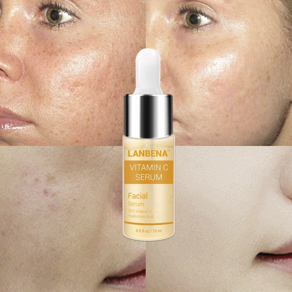 20% Vitamin C Serum LANBENA Facial Hyaluronic Acid Remove Freckles Whiten Darkspots Blackpoints Labena Anti Aging Lambena Charms