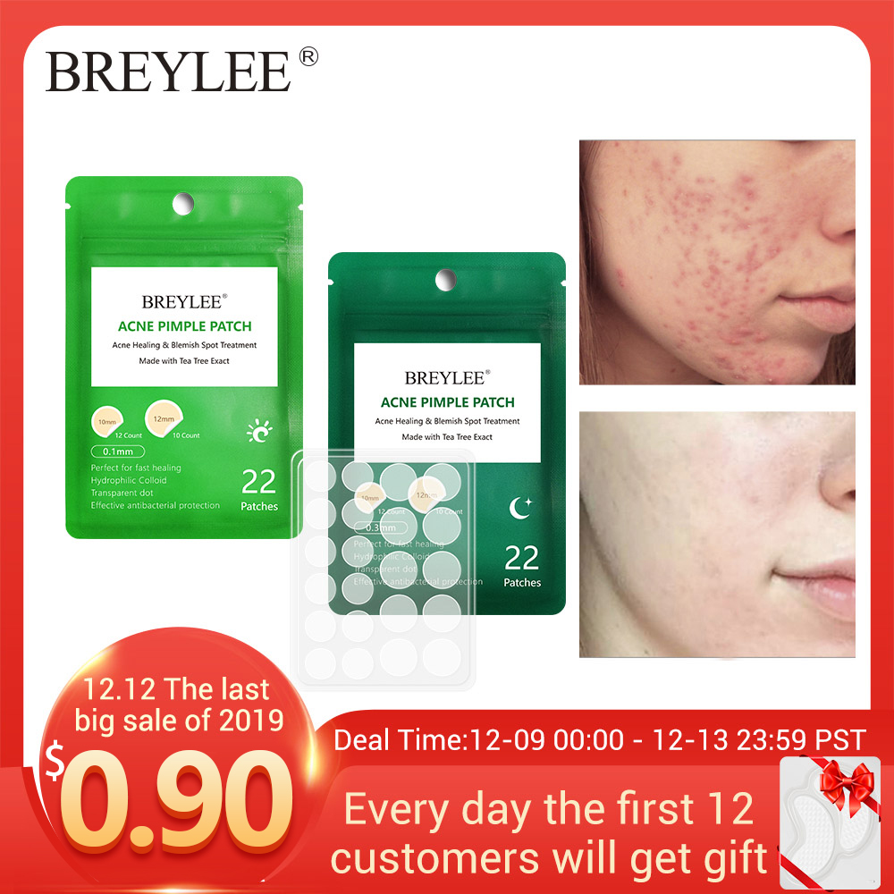 Breylee Acne Treatment Face Mask Face Serum Skin Care Face Cream Acne Cream Whitening Cream Facial Masks Pimples Remover Tools