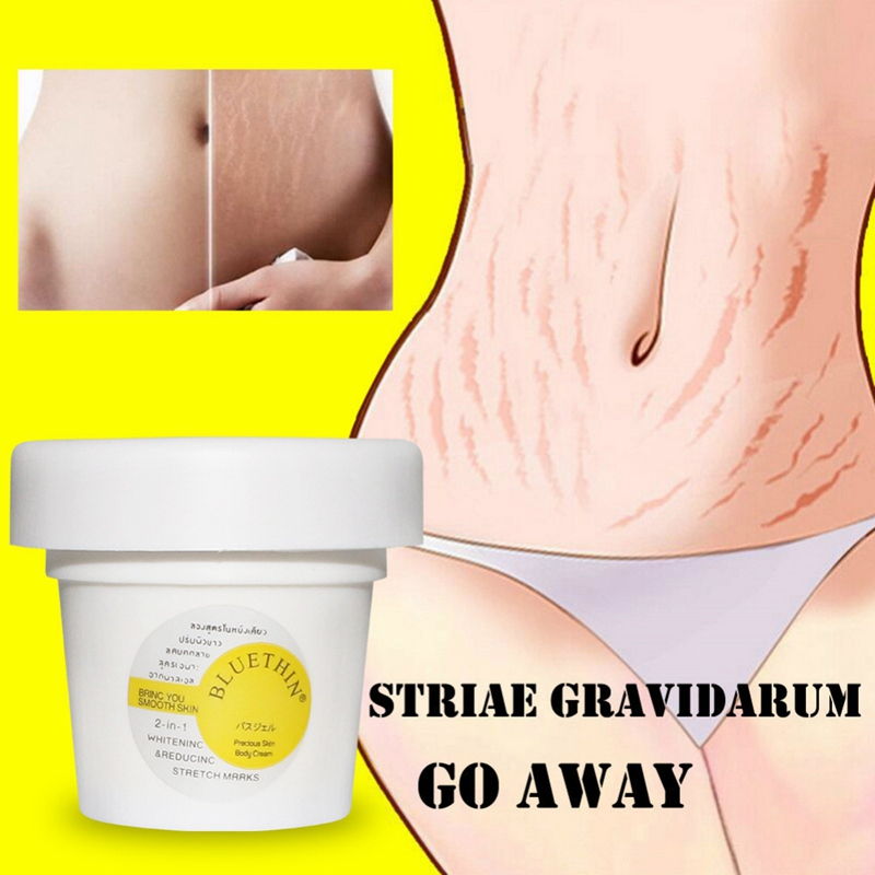 New Arrival Effective Stretch Marks Scar Removal Cream Slack Line Firming & Lifting Skin Stretch Mark Repair Cream Skin Care