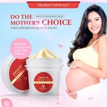 Meiyanqiong Крем для гладкой кожи для Удаления растяжек и шрамов для восстановления кожи тела крем для удаления шрамов после родов