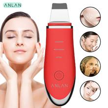 купить Ultrasonic Skin Scrubber, ANLAN Ultrasonic Face Cleaner Skin Scrubber Cleansing Acne Facial Removal Ultrasonic Vibration Peeling в интернет-магазине
