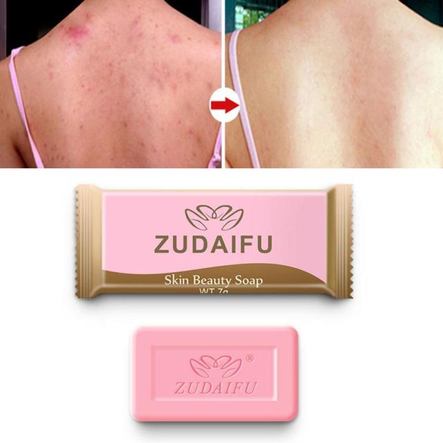 NEW zudaifu 7g Sulfur Soap Skin Cleaning soap base Acne savon rose fleur whitening soap gift set mini soap Removal Pimple TSLM1 1