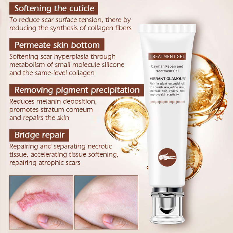 Vibrant Glamour Repair Scar Removal Cream Acne Scars Gel Stretch