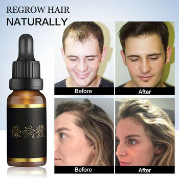 Hair Growth Serum Essence Oil for Fast Hair Growth Anti Hair Loss Treatment Ginger Hair Loss Products for Women Men Hair Tonic tonic body treatment oil