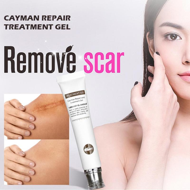 20ML  Repair Scar Removal Cream For Body Pigmentation Corrector Scalded Surgery Scar Repair Skin Care Body Cream