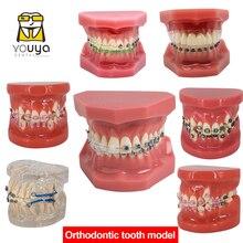 Modèle de dents de soins bucco-dentaires dentiste modèle de dents orthodontiques démonstration enseignement des résultats de Communication médecin-Patient