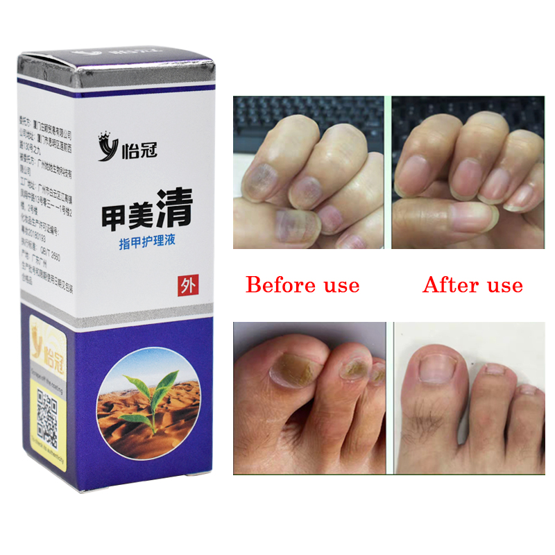 Paronychia Onychomycosis Nail Treatment Chinese Herbs Antifungal Prevent Infection Nail Fungus Cuticle Soften Corrector Manicure
