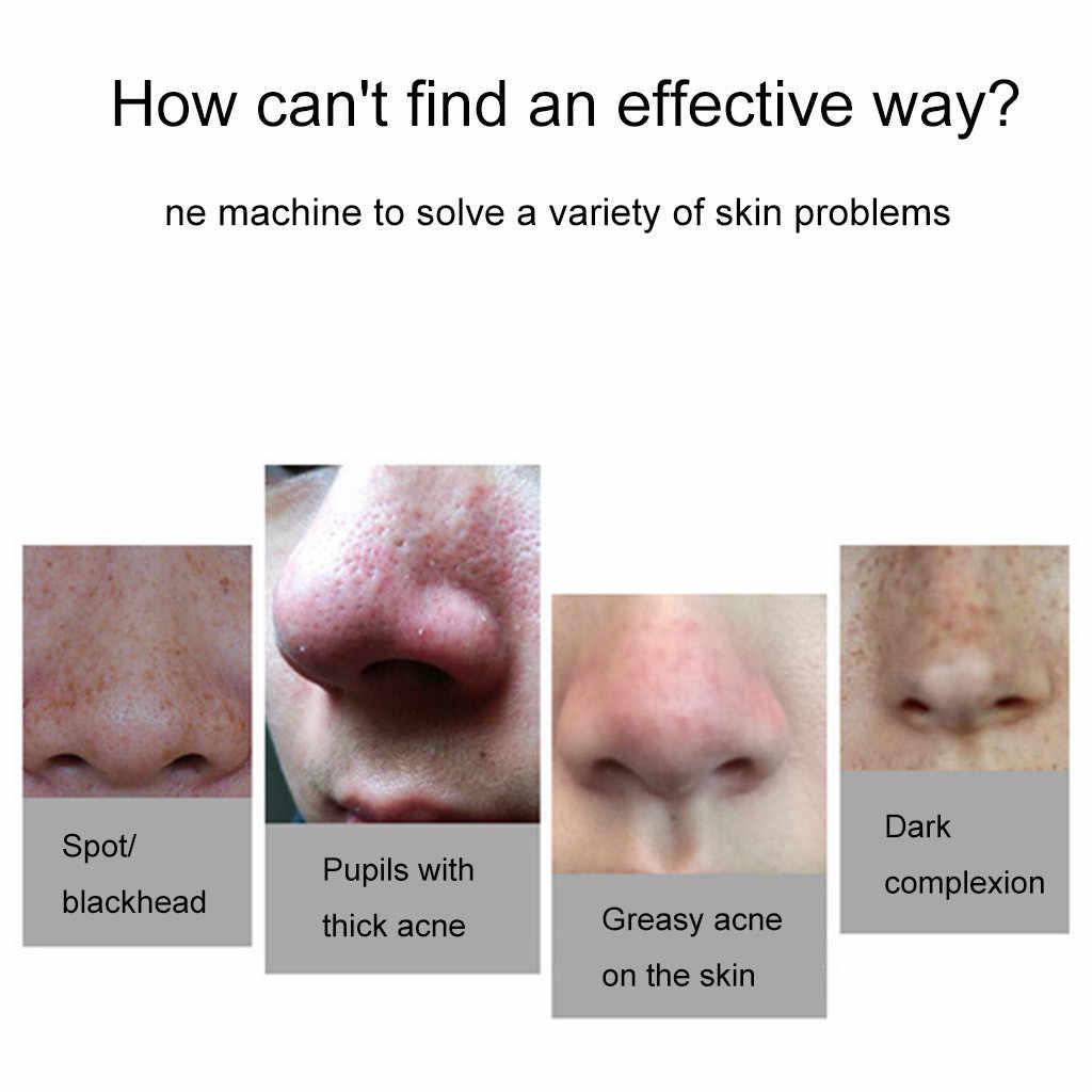 Pori Pembersih Mesin Electric Komedo Remover Pori Vacuum Cleaner Titik Hitam Jerawat Jerawat Penghapusan Vakum Isap Facial # ZF