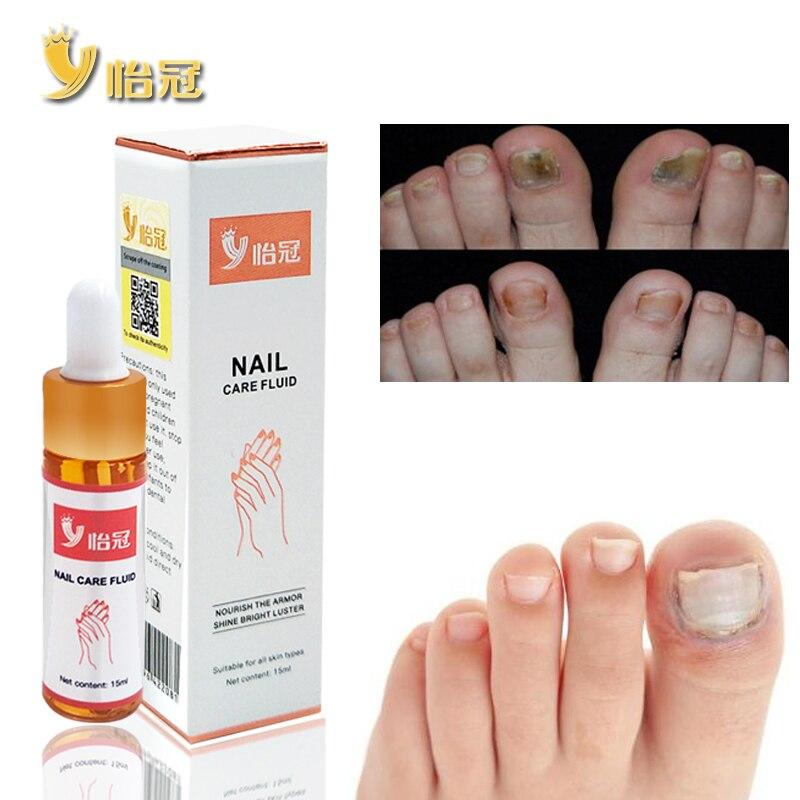 Herramientas de reparación para el cuidado de las uñas de los pies para mejorar la infección 15ML Zapatillas de masaje a rayas reflexología acupuntura sandalias acupuntura del pie zapatos para Mujeres Hombres TC21