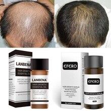 Fast Powerful Hair Growth Hair Loss Dense Hair Fast Growth Oil Hair Loss Products