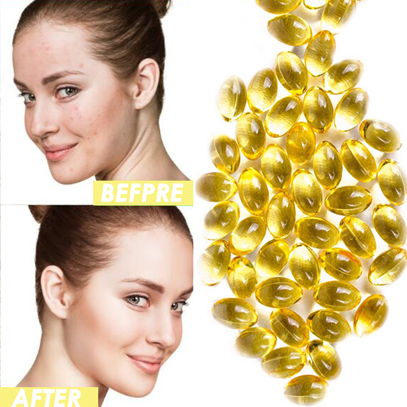 10/20/50/100pcs New Vitamin E Capsules For Face Skin Whitening Essence Anti Aging Moisturizing Essence Wrinkle Remove