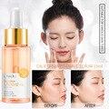Gesicht Serum haut bleaching essenz Vitamin C & E Anti-Aging Akne Schrumpfen poren Feuchtigkeit hautpflege