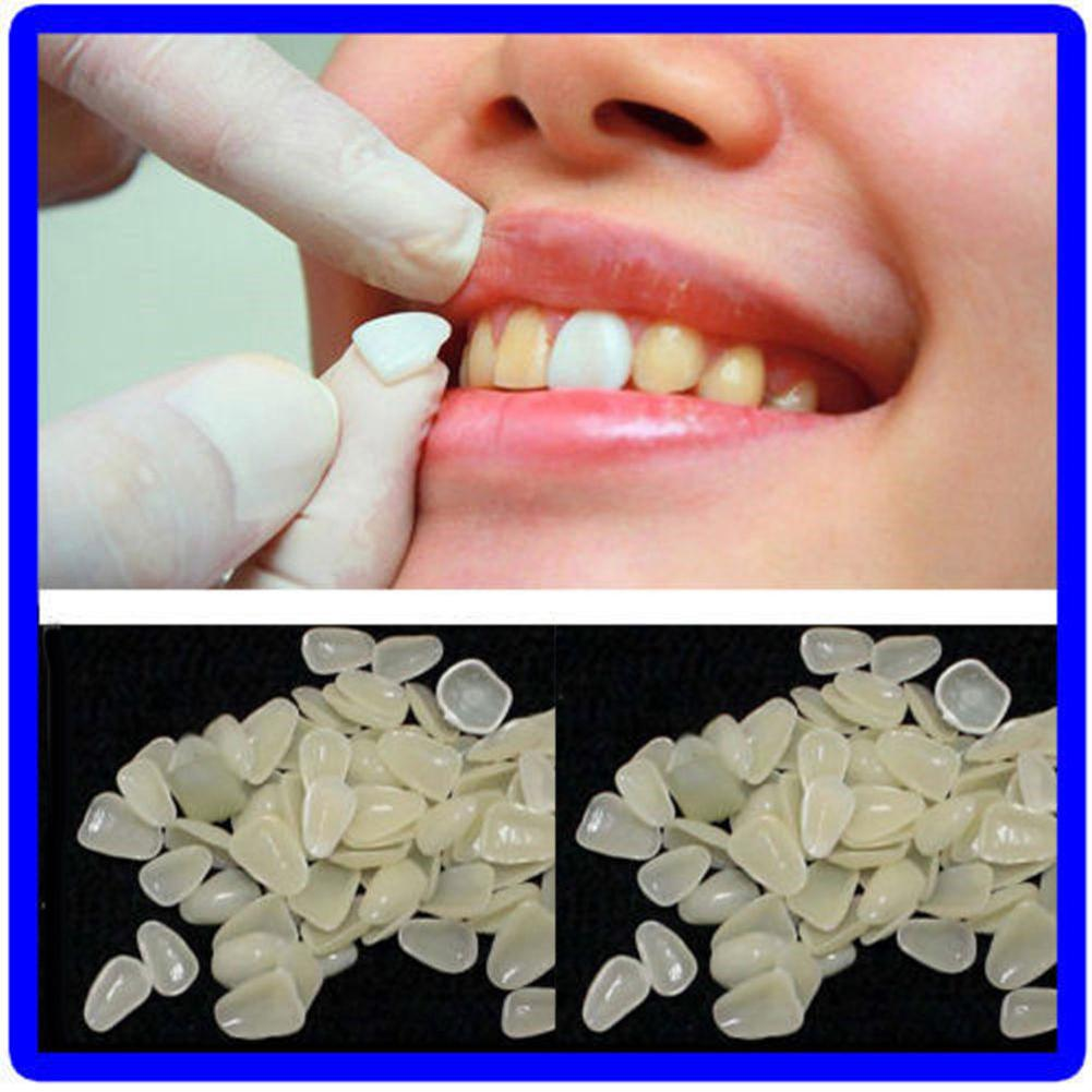 70 Pcs Temporary Resin Dental Sticker Shade Dental Whitening Veneers Teeth Upper Beauty