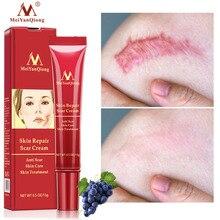 Acne Scar Removal Cream…