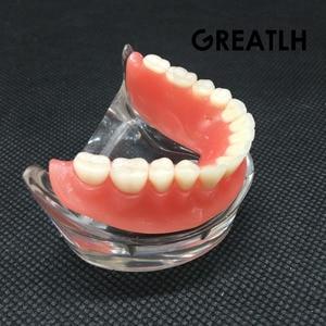 Image 4 - השיניים Overdenture פנים Mandibular נמוך שיניים דגם Mandibular עם שתל שיקום שן שיניים הוראת מחקר
