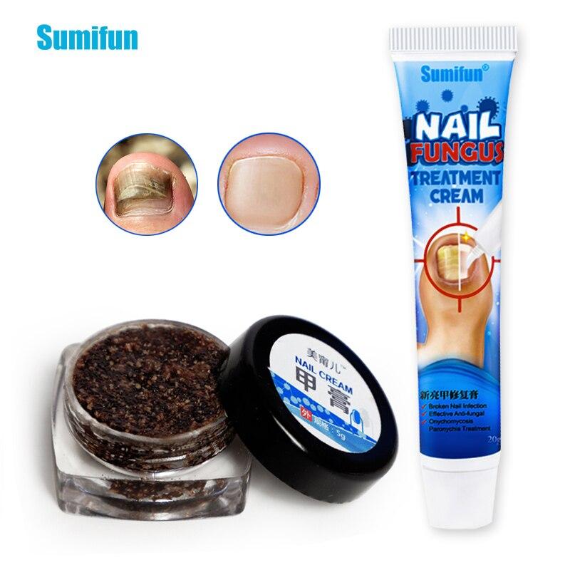 Мазь Sumifun Антибактериальная восстанавливающая для ногтей, крем отбеливающий против инфекции пальцев ногтей, 2 вида