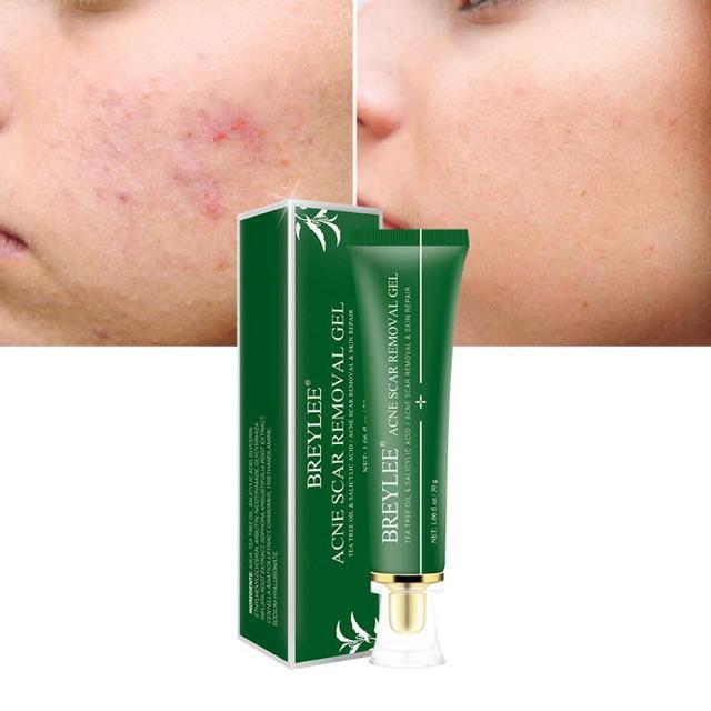 Tea Tree Cleansing Acne Cream Anti Acne Marks Shrink Pores Face Cream Deep Cleansing Control Oil Facial Skin Care Cream TSLM2| |   -